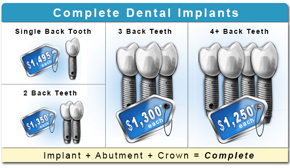 Dental Implant Costs Mobile